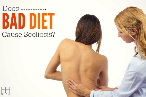 Does Bad Diet Cause Scoliosis?