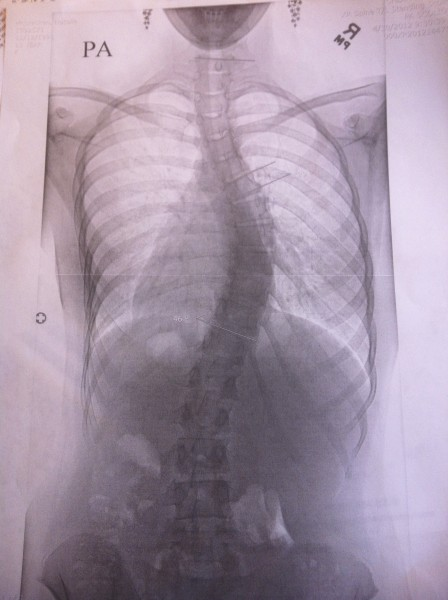 scoliosis x-ray pre surgery